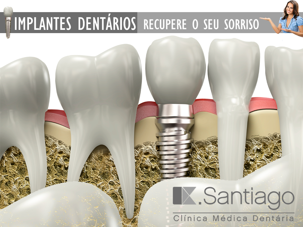 flyer-implantes-dentarios_SEM_TEXTO